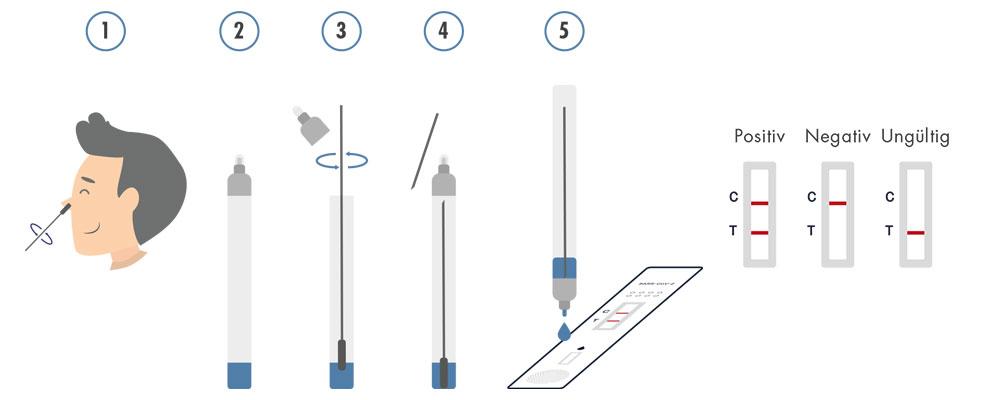 Casada Nasenabstrichl Test Anwendung